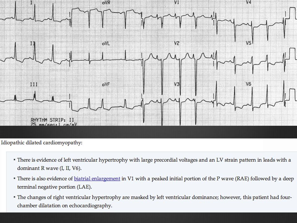 http://lifeinthefastlane.com/ecg-library/dilated-cardiomyopathy/