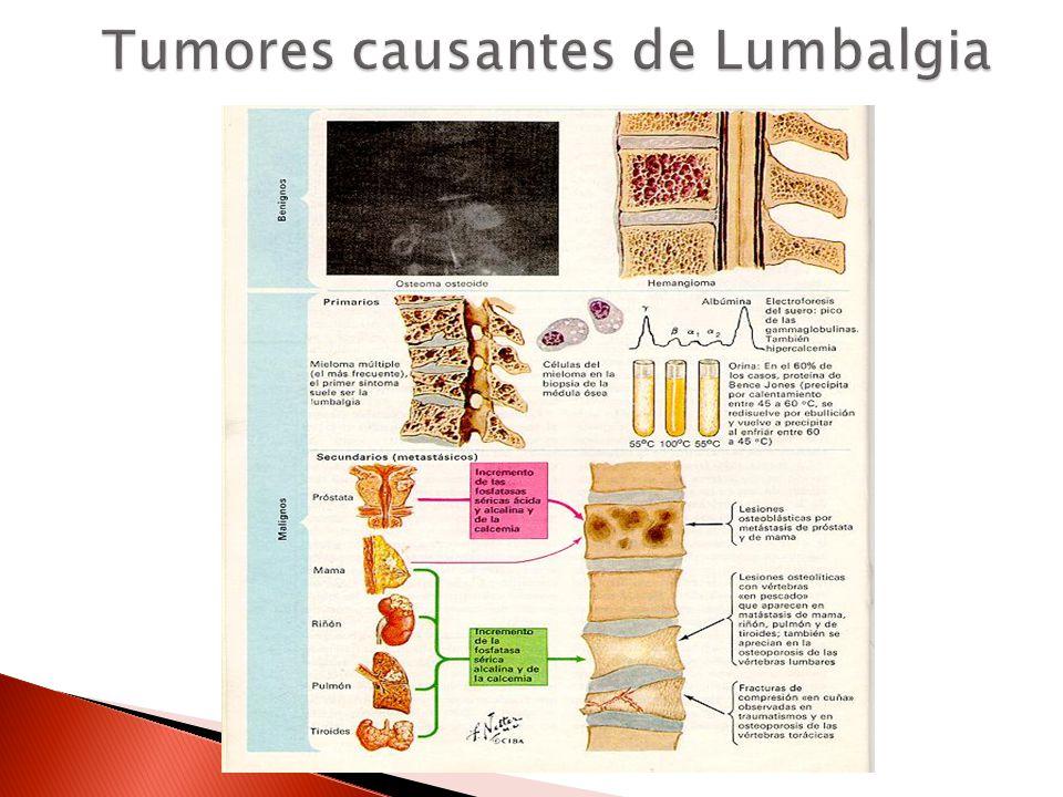 Tumores causantes de Lumbalgia