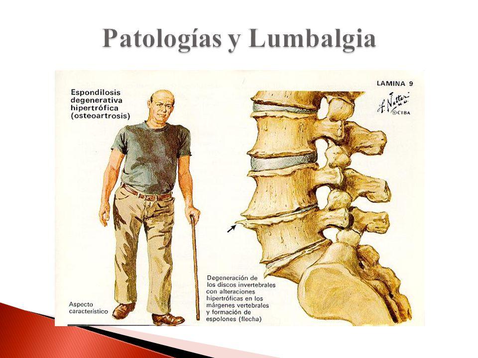 Patologías y Lumbalgia