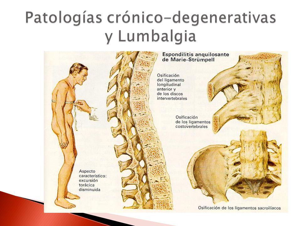 Patologías crónico-degenerativas y Lumbalgia