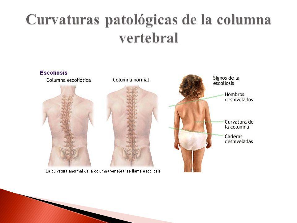Curvaturas patológicas de la columna vertebral