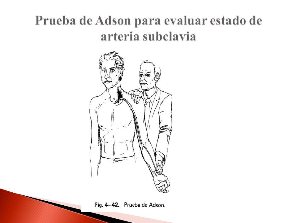 Prueba de Adson para evaluar estado de arteria subclavia