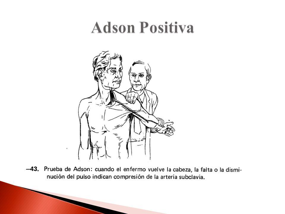 Adson Positiva Adson Para evaluar compresión del plexio braquial y la arteria subclavia. Causas de la compresión: