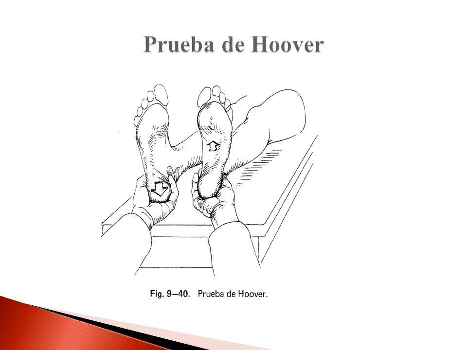 Prueba de Hoover El px al hacer el esfuerzo de levantar una pierna, se siente el esfuerzo de la otra.