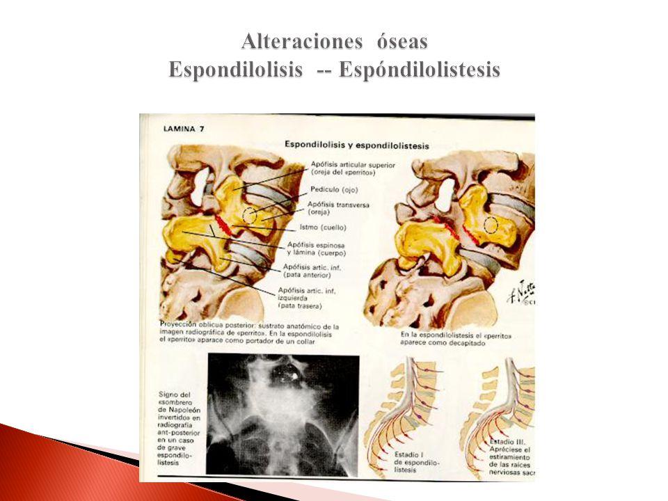 Alteraciones óseas Espondilolisis -- Espóndilolistesis