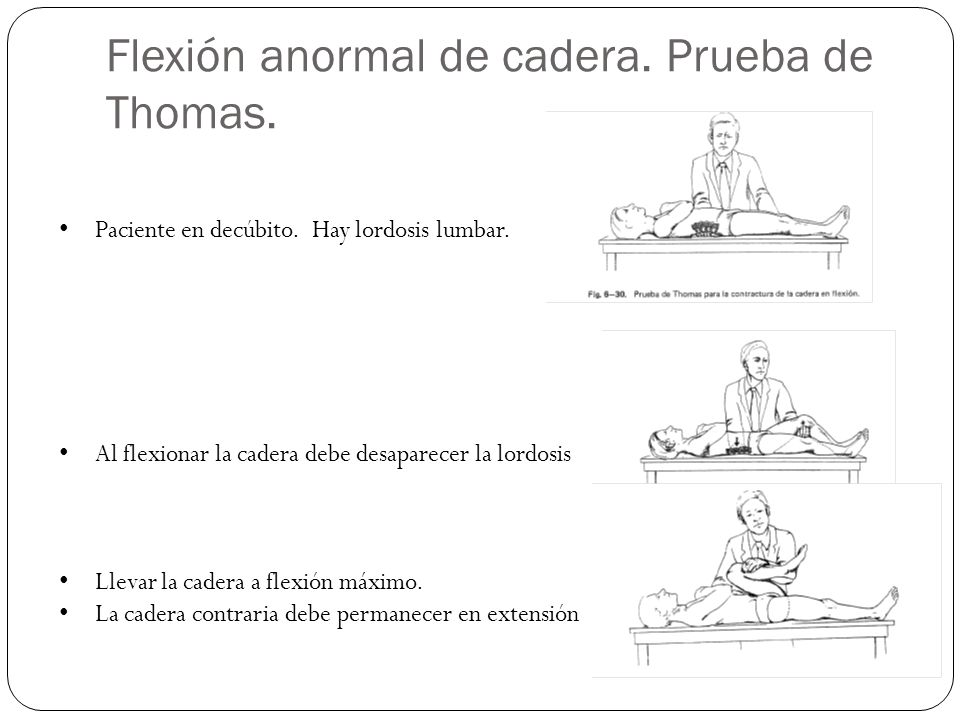 Flexión anormal de cadera. Prueba de Thomas.