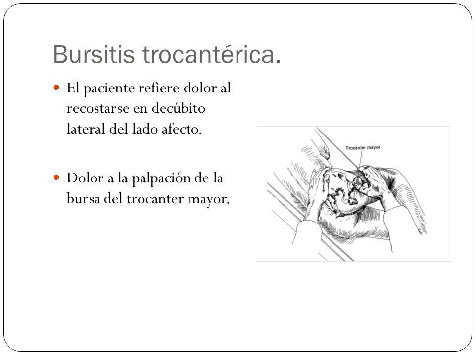 Bursitis trocantérica.