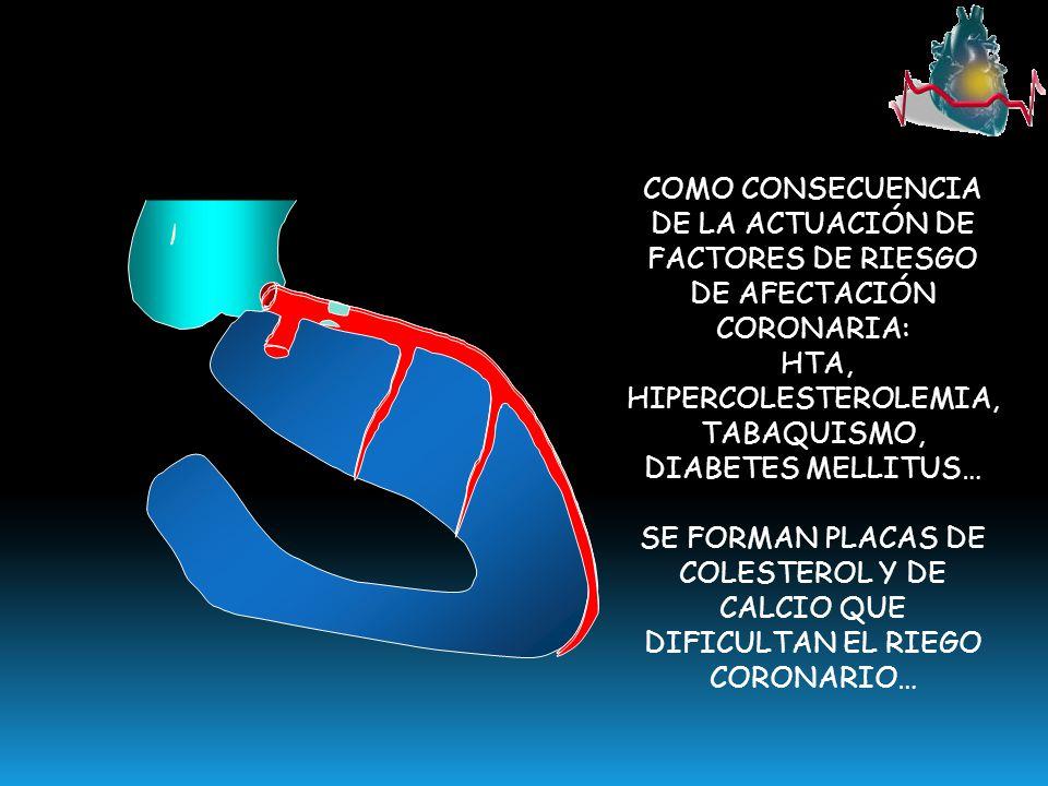 HTA, HIPERCOLESTEROLEMIA, TABAQUISMO, DIABETES MELLITUS…