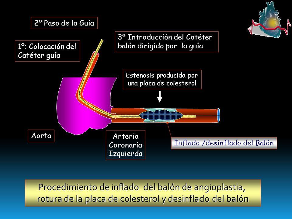Procedimiento de inflado del balón de angioplastia,