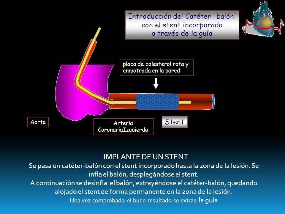 Introducción del Catéter- balón con el stent incorporado