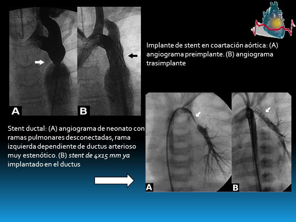 Implante de stent en coartación aórtica: (A) angiograma preimplante