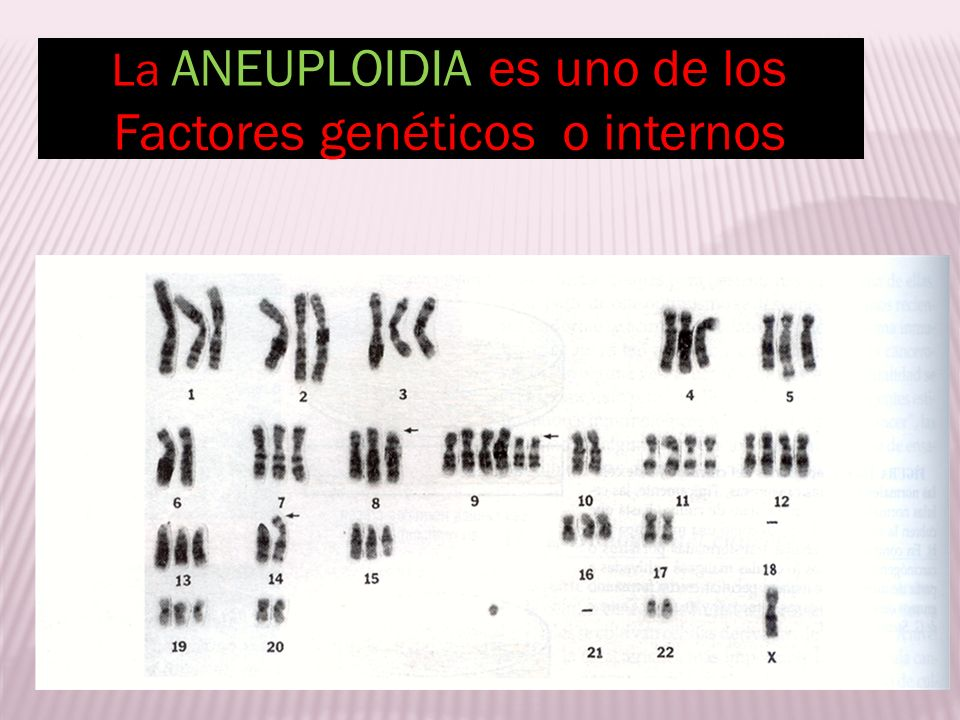 Factores genéticos o internos
