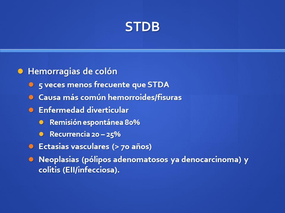 STDB Hemorragias de colón 5 veces menos frecuente que STDA