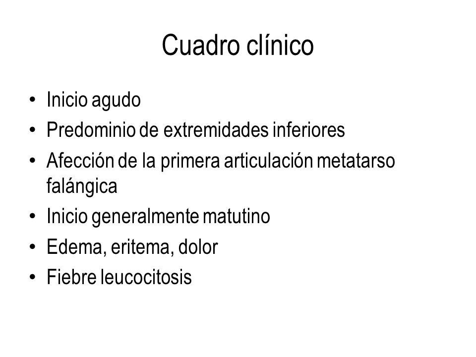 Cuadro clínico Inicio agudo Predominio de extremidades inferiores