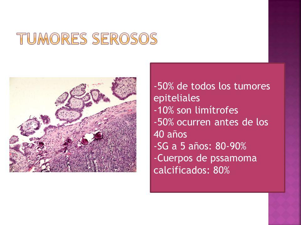 Tumores Serosos -50% de todos los tumores epiteliales