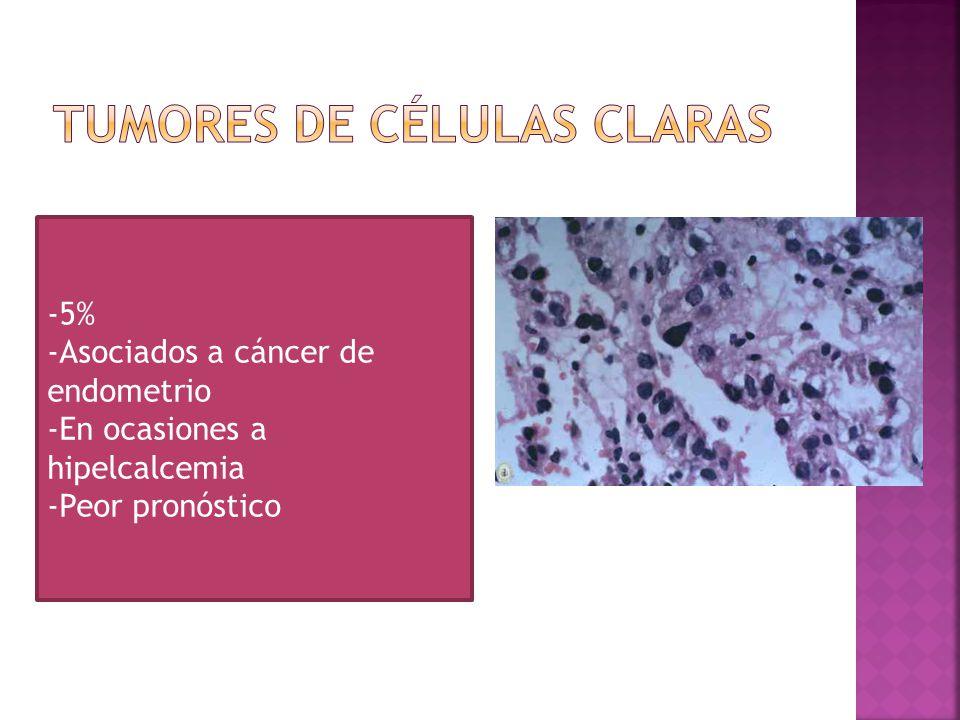 Tumores de células claras
