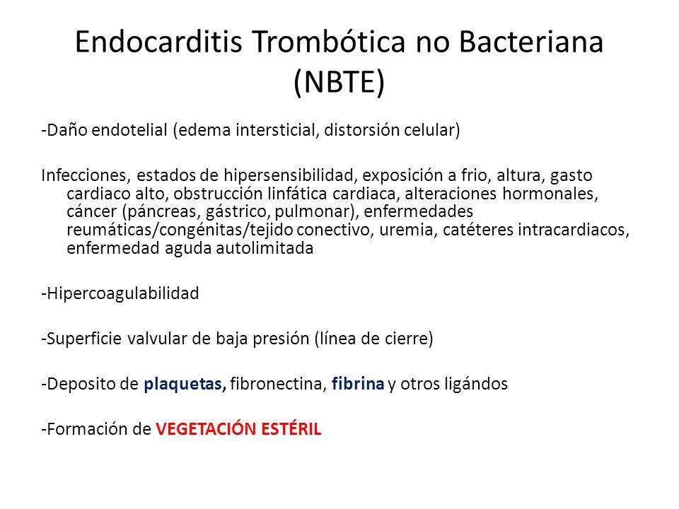 Endocarditis Trombótica no Bacteriana (NBTE)