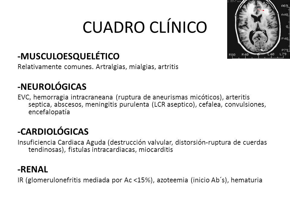 CUADRO CLÍNICO -MUSCULOESQUELÉTICO -NEUROLÓGICAS -CARDIOLÓGICAS -RENAL