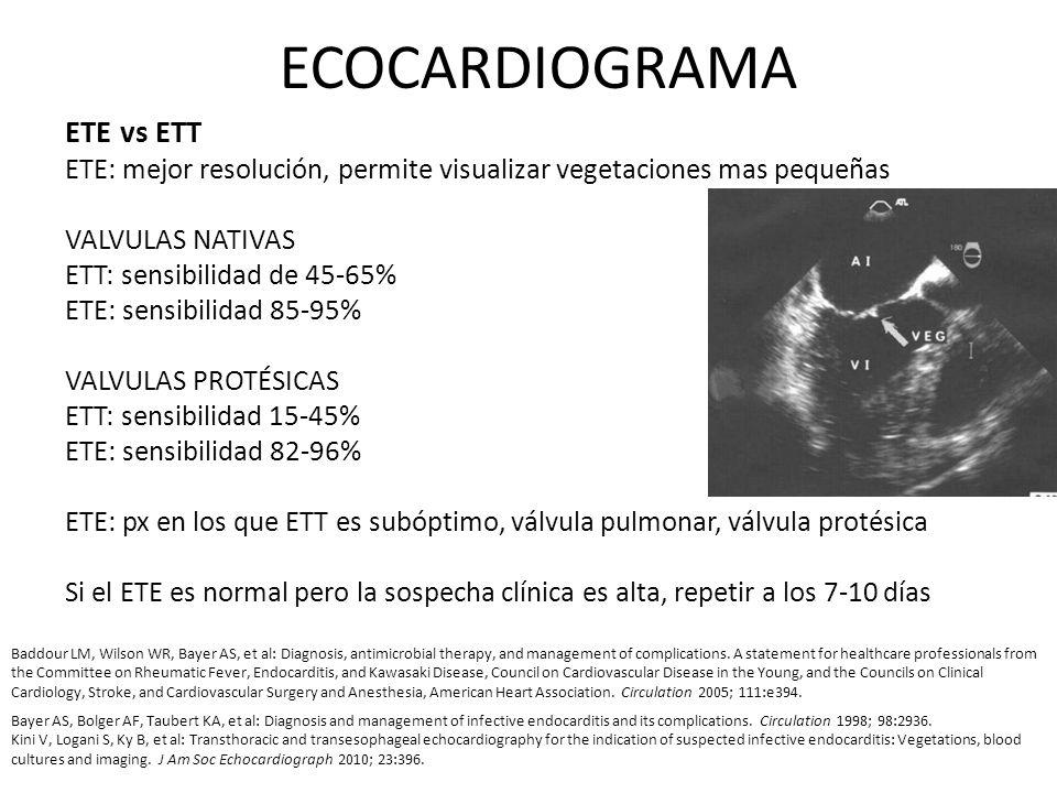 ECOCARDIOGRAMA ETE vs ETT