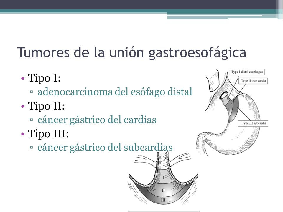 Tumores de la unión gastroesofágica