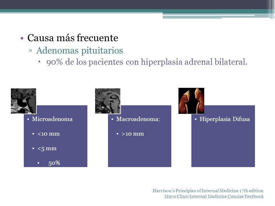Causa más frecuente Adenomas pituitarios