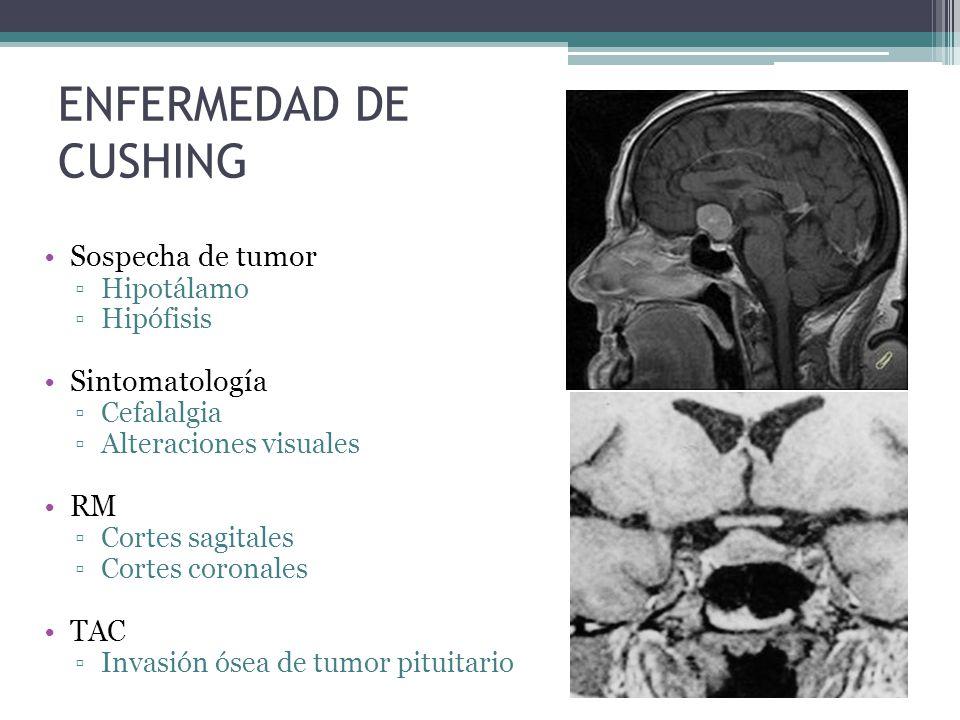 ENFERMEDAD DE CUSHING Sospecha de tumor Sintomatología RM TAC
