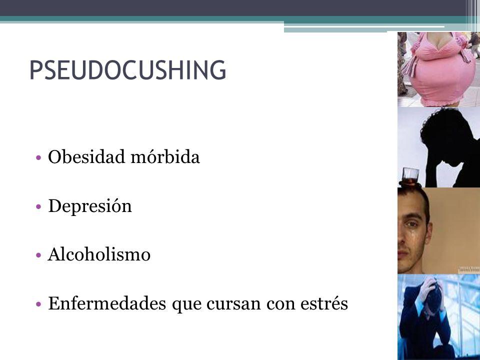 PSEUDOCUSHING Obesidad mórbida Depresión Alcoholismo