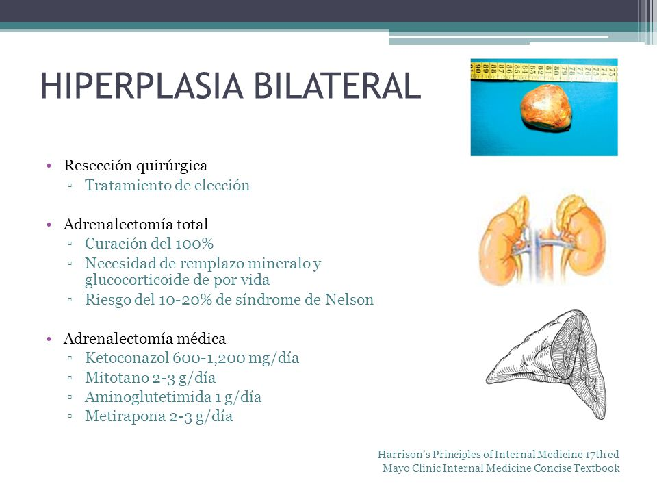 HIPERPLASIA BILATERAL
