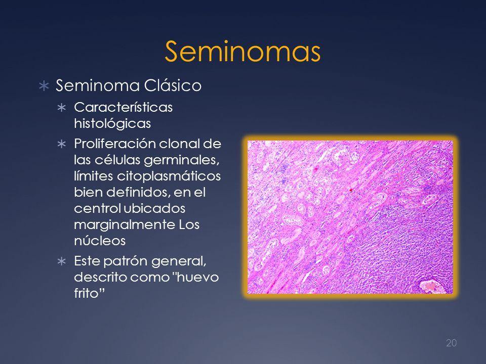 Seminomas Seminoma Clásico Características histológicas