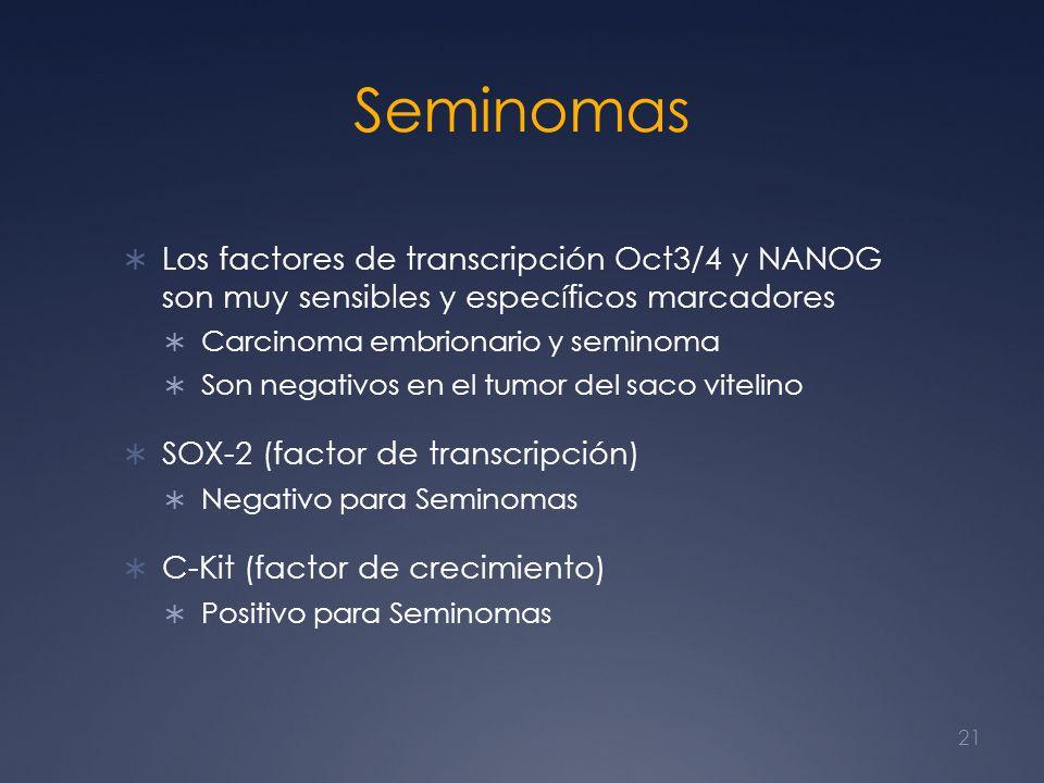 Seminomas Los factores de transcripción Oct3/4 y NANOG son muy sensibles y específicos marcadores.