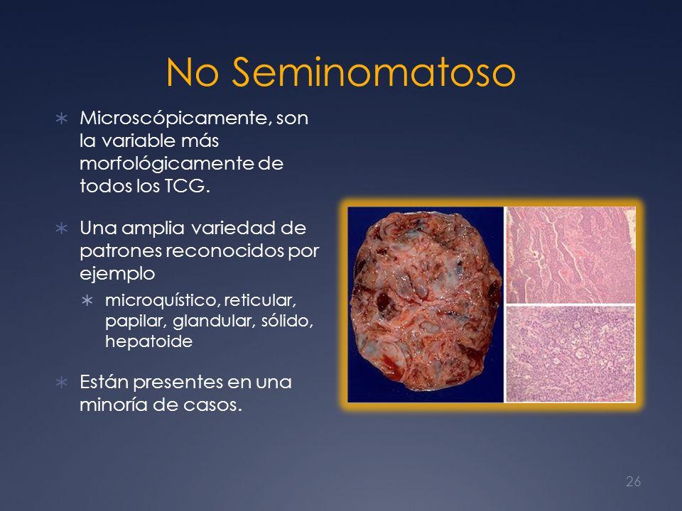 No Seminomatoso Microscópicamente, son la variable más morfológicamente de todos los TCG.