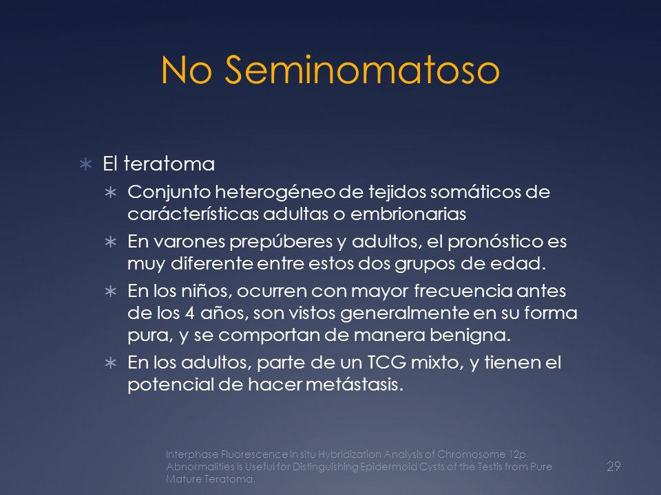 No Seminomatoso El teratoma