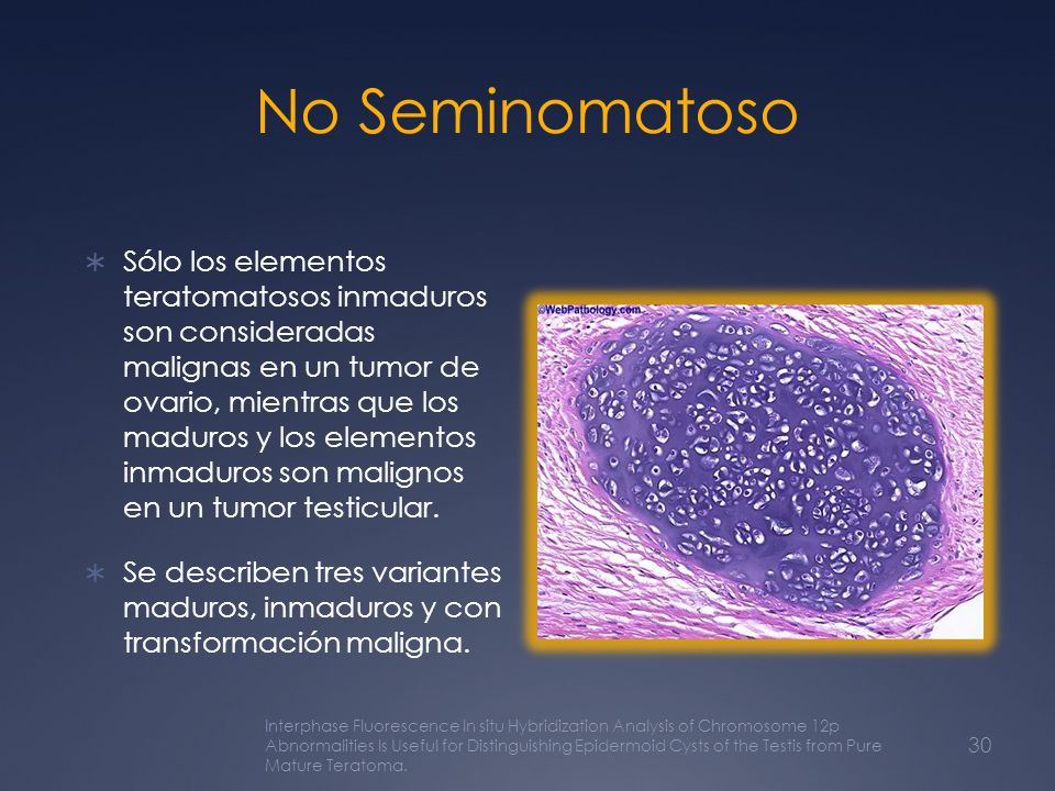 No Seminomatoso
