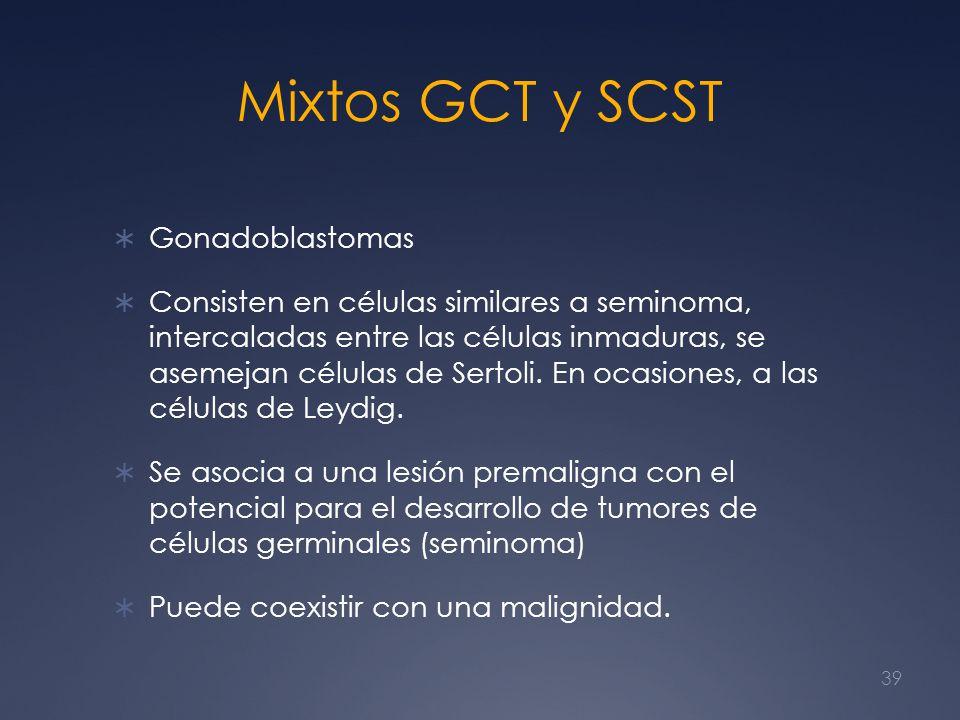 Mixtos GCT y SCST Gonadoblastomas