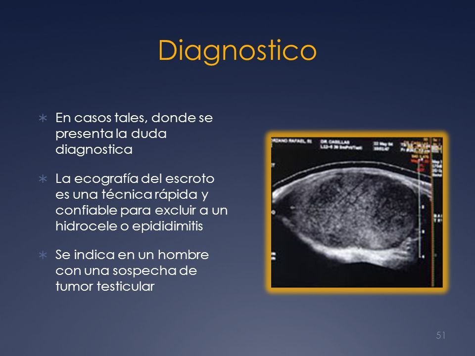 Diagnostico En casos tales, donde se presenta la duda diagnostica
