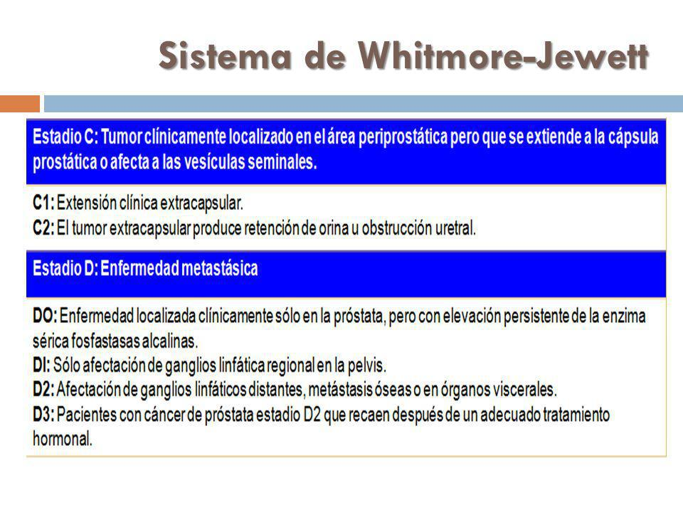 Sistema de Whitmore-Jewett