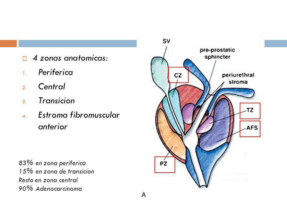 Estroma fibromuscular anterior