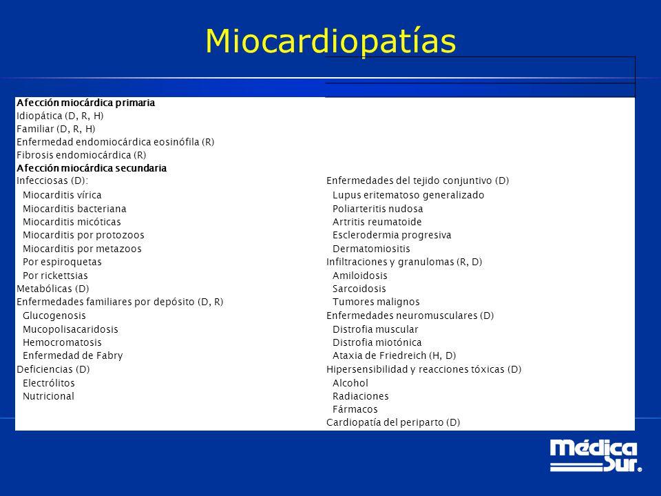 Miocardiopatías Afección miocárdica primaria Idiopática (D, R, H)