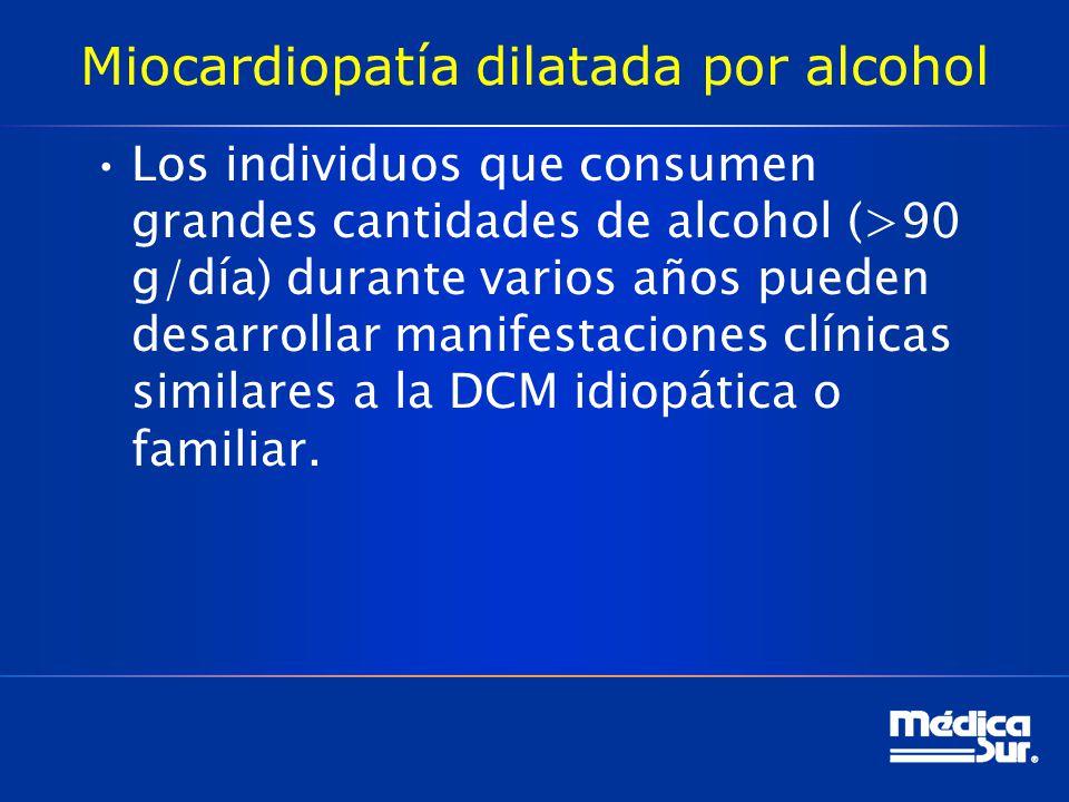 Miocardiopatía dilatada por alcohol