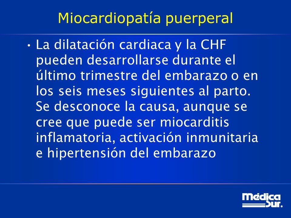 Miocardiopatía puerperal