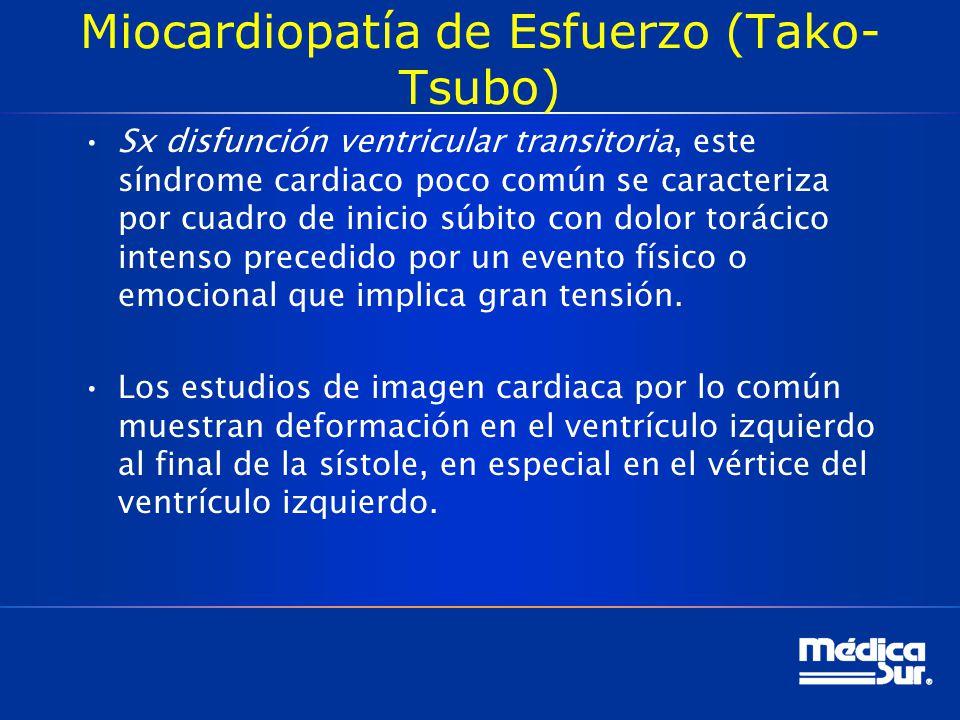 Miocardiopatía de Esfuerzo (Tako-Tsubo)