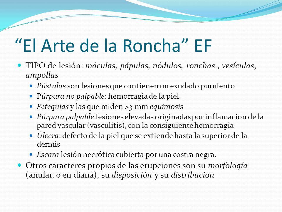 El Arte de la Roncha EF