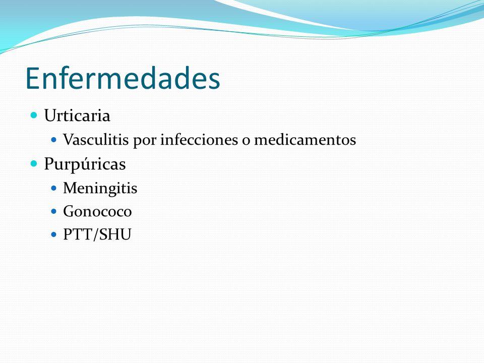 Enfermedades Urticaria Purpúricas