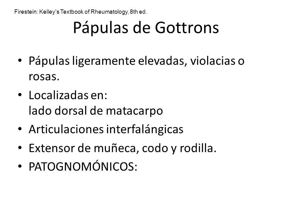 Pápulas de Gottrons Pápulas ligeramente elevadas, violacias o rosas.