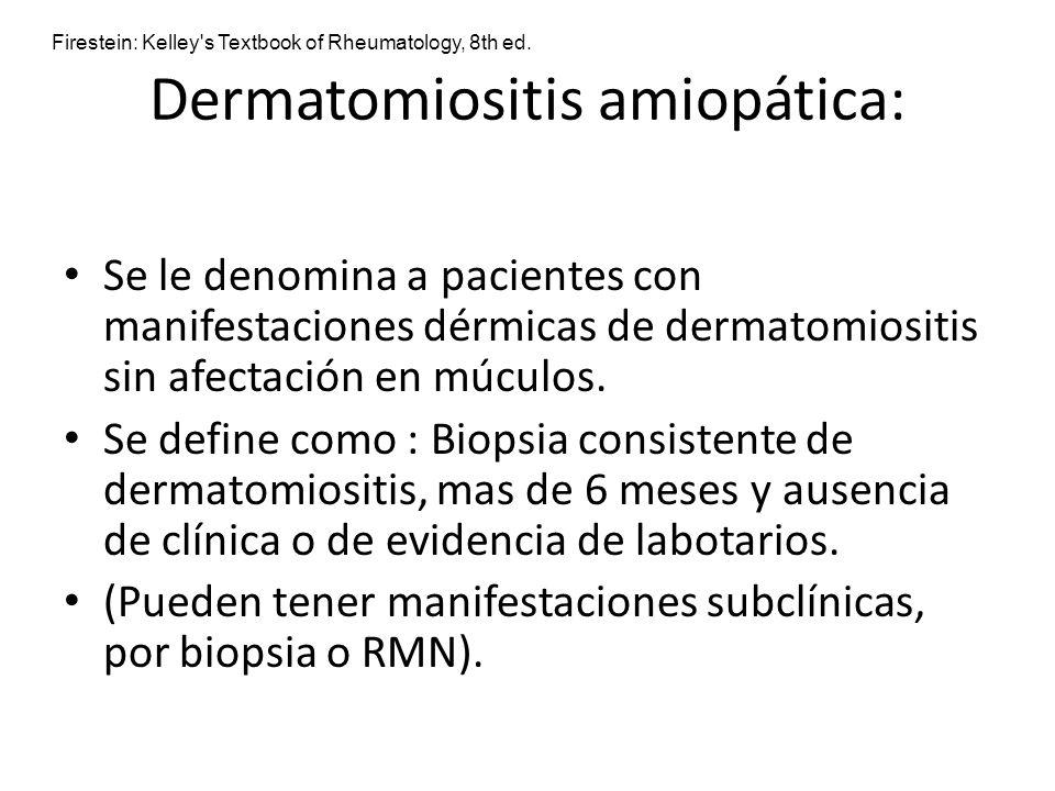 Dermatomiositis amiopática: