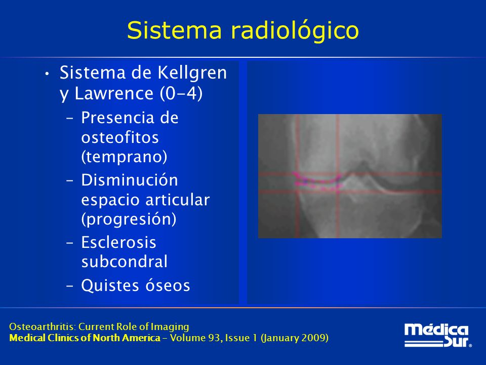 Sistema radiológico Sistema de Kellgren y Lawrence (0-4)