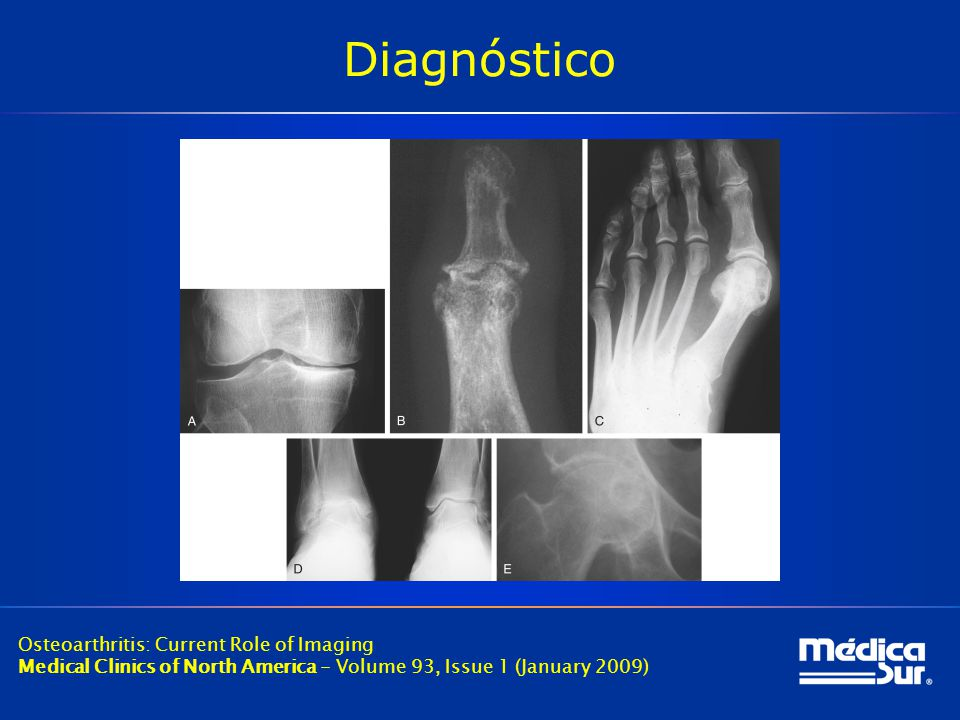 Diagnóstico Osteoarthritis: Current Role of Imaging