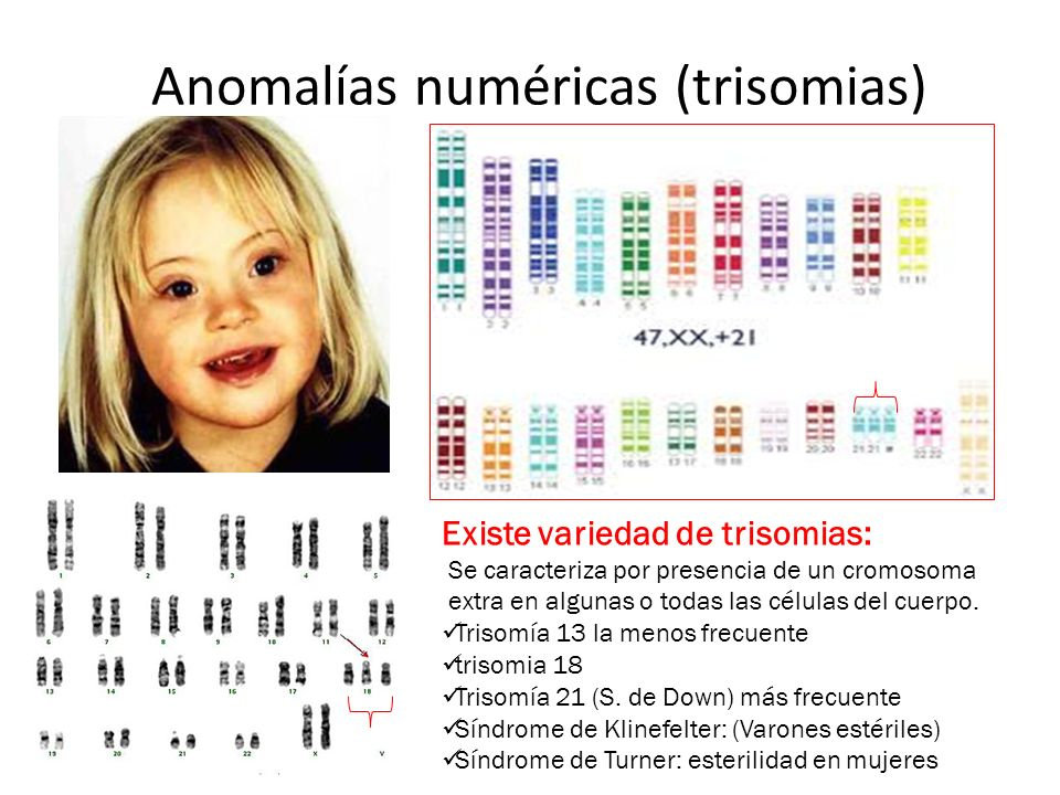 Anomalías numéricas (trisomias)