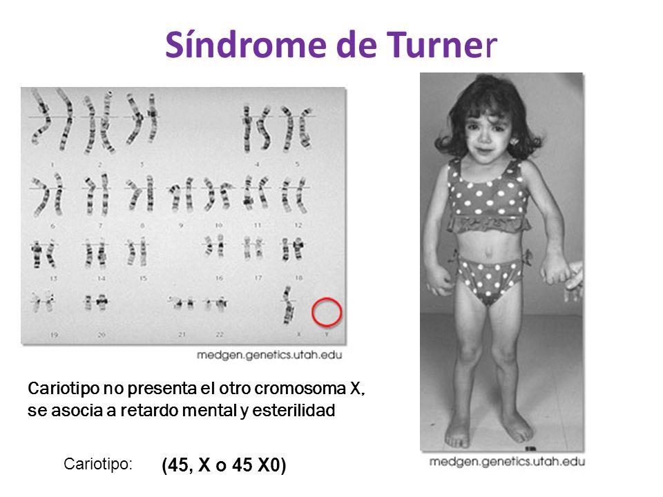 Síndrome de Turner Cariotipo no presenta el otro cromosoma X, se asocia a retardo mental y esterilidad.