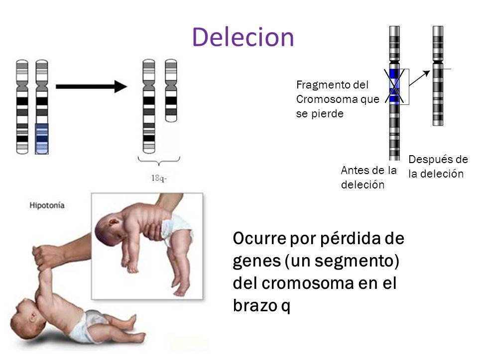 Delecion Fragmento del. Cromosoma que se pierde. Después de la deleción. Antes de la deleción.